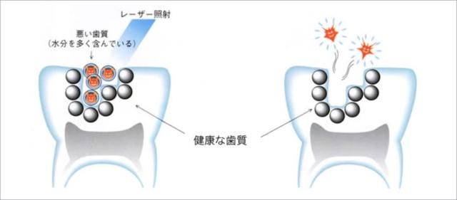 レーザー虫歯治療
